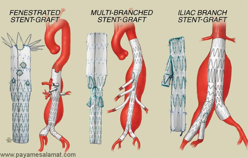 انسداد آئورت شکمی و روش های تشخیص و درمان آن