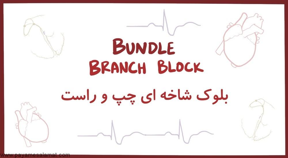 بلوک شاخه ای Bundle Branch Block چیست؟