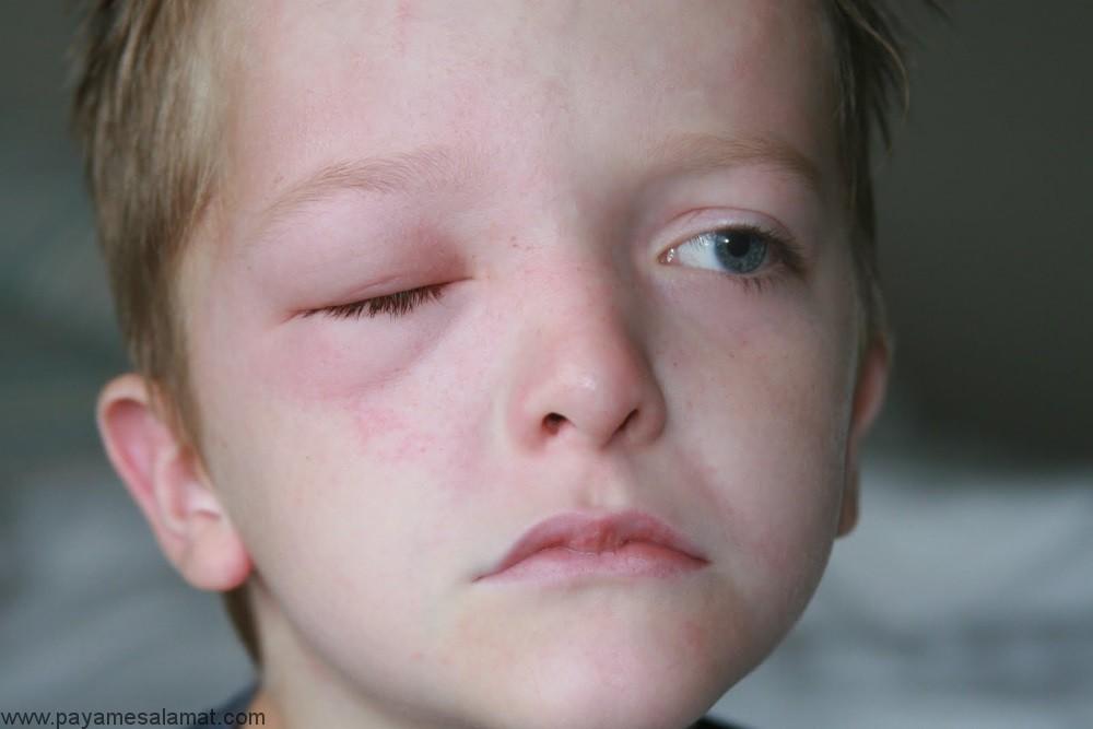 علل، علائم و درمان بیماری شاگاس