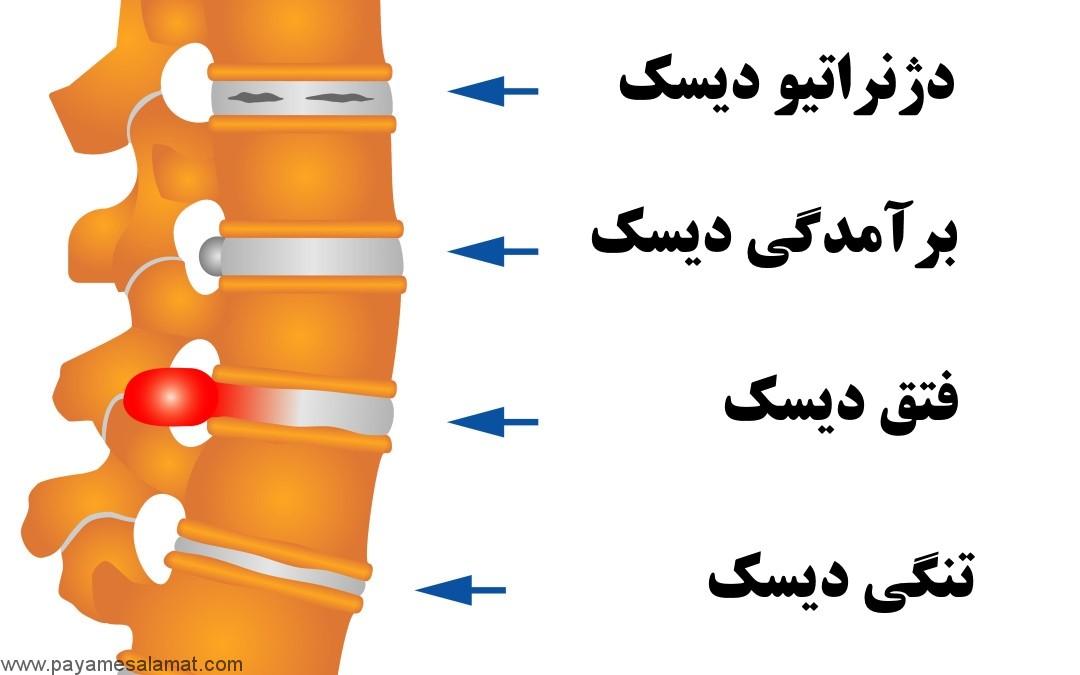علل، نشانه ها و درمان بیماری دژنراتیو دیسک