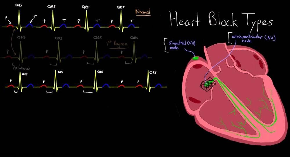 بلوک قلبی Heart Block