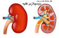 علت و درمان دیسپلازی کلیه و معرفی رژیم غذایی مناسب برای افراد مبتلا به این بیماری