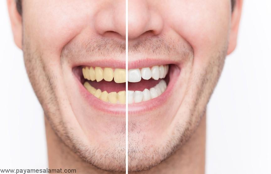 10 روش طبیعی برای سفید کردن دندان