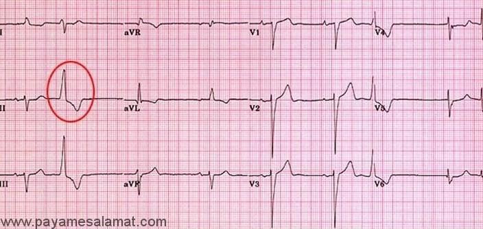 ضربان زودرس بطنی Ventricular Premature Beats