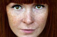 انواع، علل، درمان و پیشگیری از کک و مک و نقش وراثت در ایجاد این لکه های پوستی