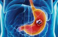 مراحل، علائم، علل، عوامل خطر و درمان سرطان معده
