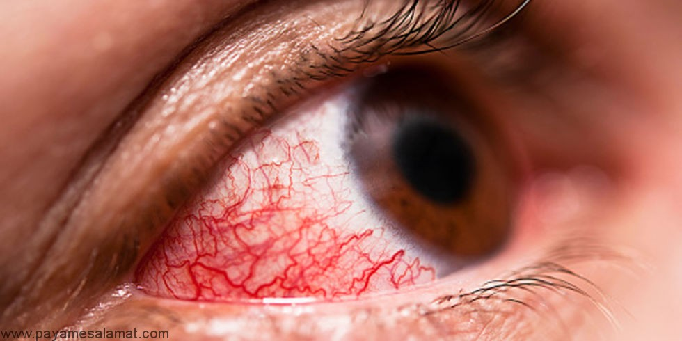 روش های درمان خانگی التهاب ملتحمه (قرمزی چشم)