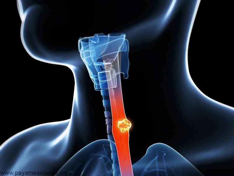 انواع، علائم، عوامل خطر، علل، تشخیص، مراحل مختلف و درمان سرطان مری