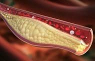 علل، نشانه ها، تشخیص و درمان کلسترول بالا