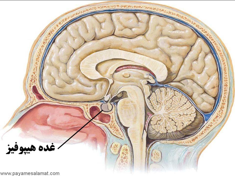 نشانه ها و درمان تومور غده هیپوفیز