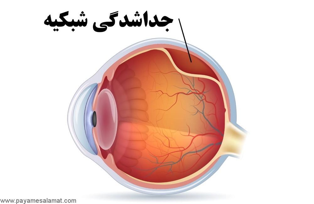 علائم، علل، عوامل خطر و درمان جداشدگی شبکیه