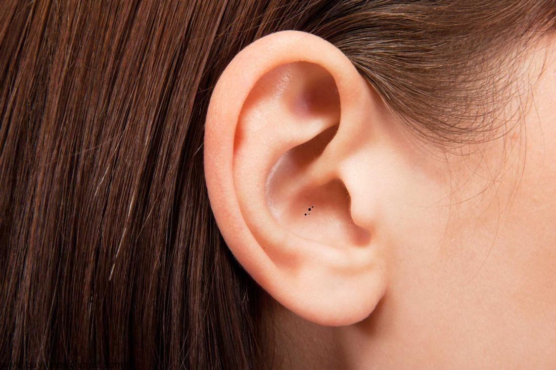 علت و موثرترین درمان های طبیعی جوش سر سیاه در گوش
