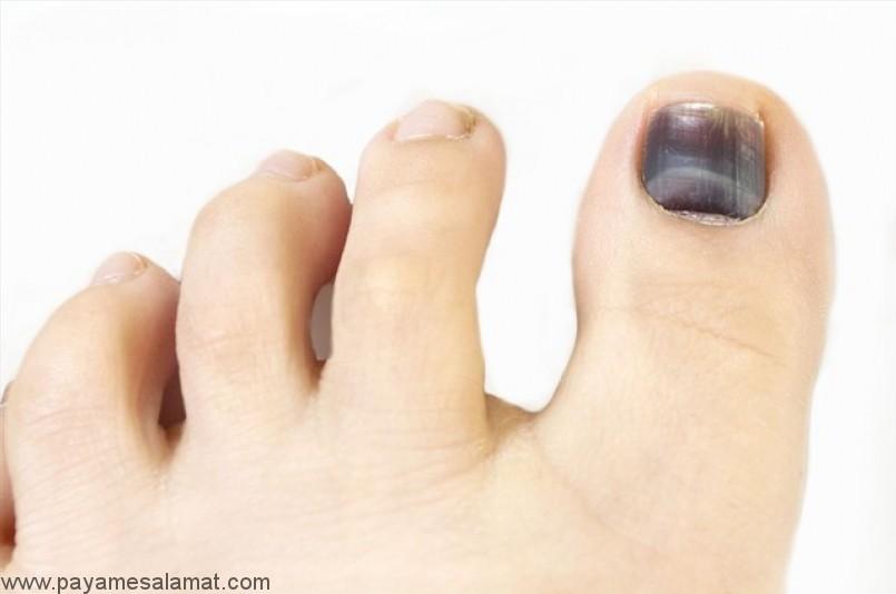 کبودی ناخن (سیاه شدن ناخن)؛ علل، علائم و درمان های خانگی موثر