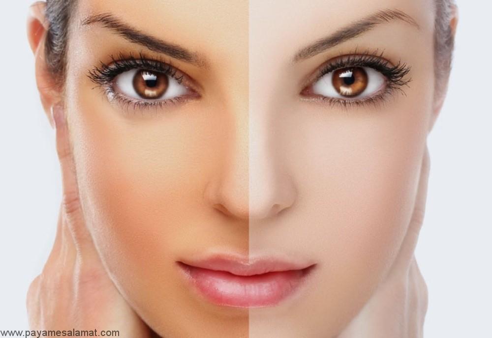 روش های طبیعی برای روشن کردن پوست
