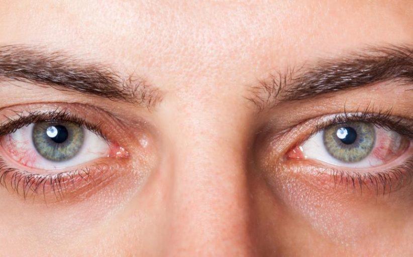 انواع، نشانه ها، علل، درمان و عوارض یووئیت چشم