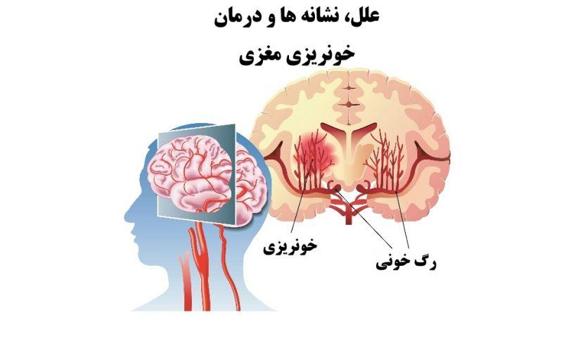 علل، نشانه ها و درمان خونریزی مغزی