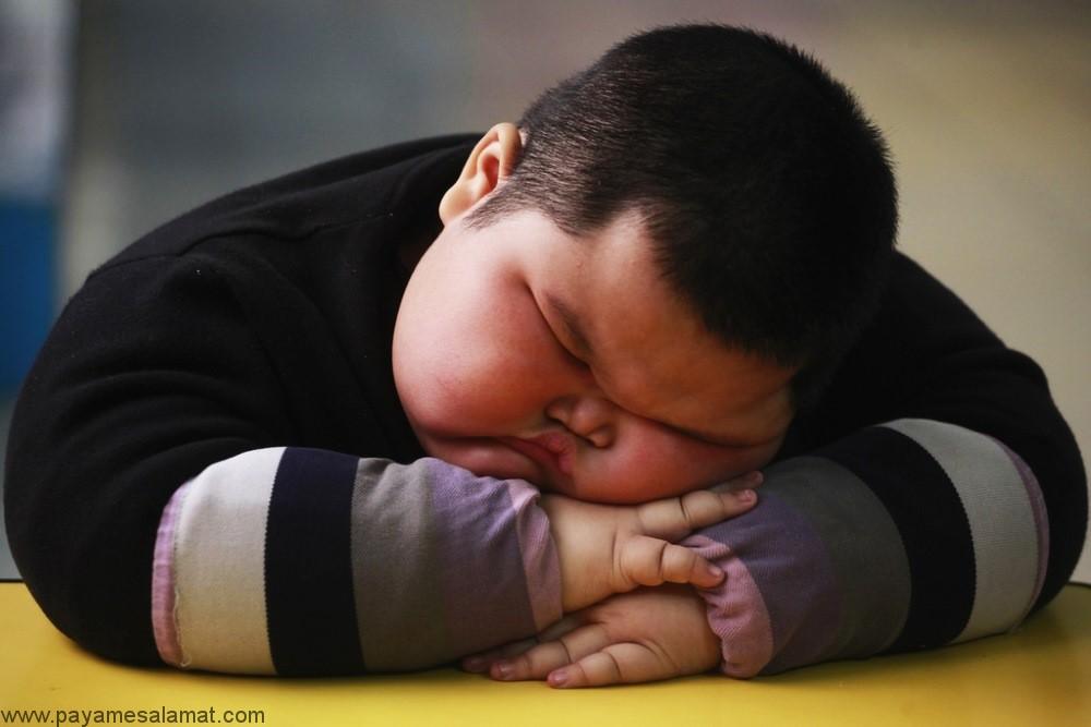 ارتباط چاقی کودکان با بیماری های مفصل ران به خصوص بیماری SCFE