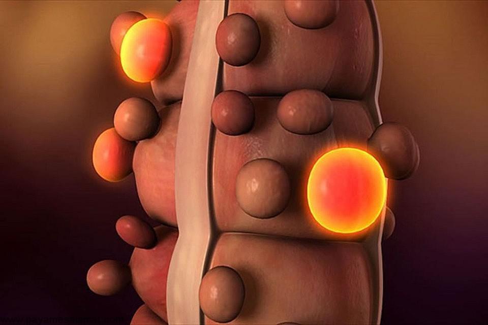 روش های درمان گیاهی دیورتیکولیت یا همان بیماری دیورتیکولی