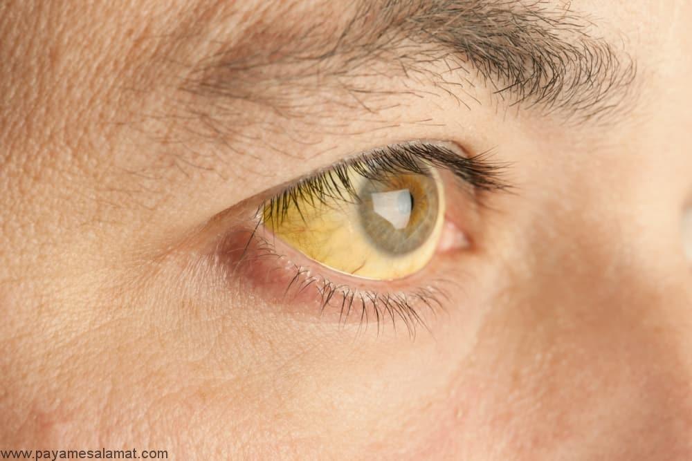 بالا بودن سطح بیلی روبین خون ؛ علائم و روش های تشخیص
