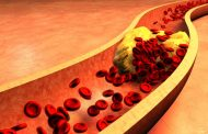 هیپرلیپیدمی (چربی خون) ؛ علل، نشانه ها، تشخیص و روش های درمان