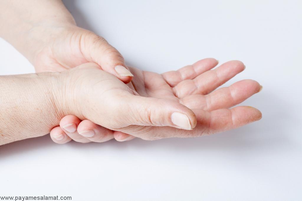 روش های معمول برای درمان لوپوس در بارداری