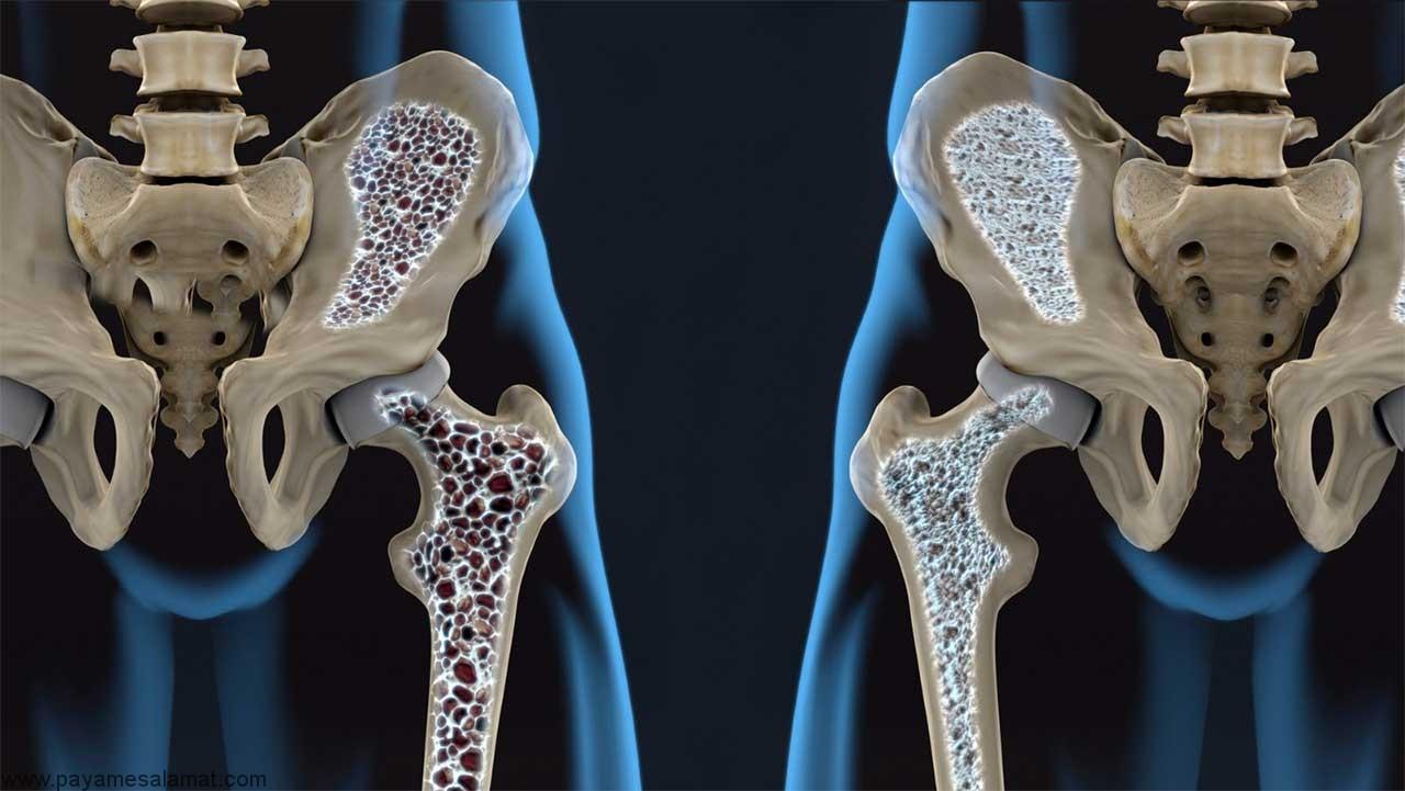استئوپنی ؛ عوامل خطر، تشخیص، درمان، پیشگیری و تفاوت آن با پوکی استخوان