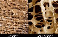 روش های درمان خانگی پوکی استخوان