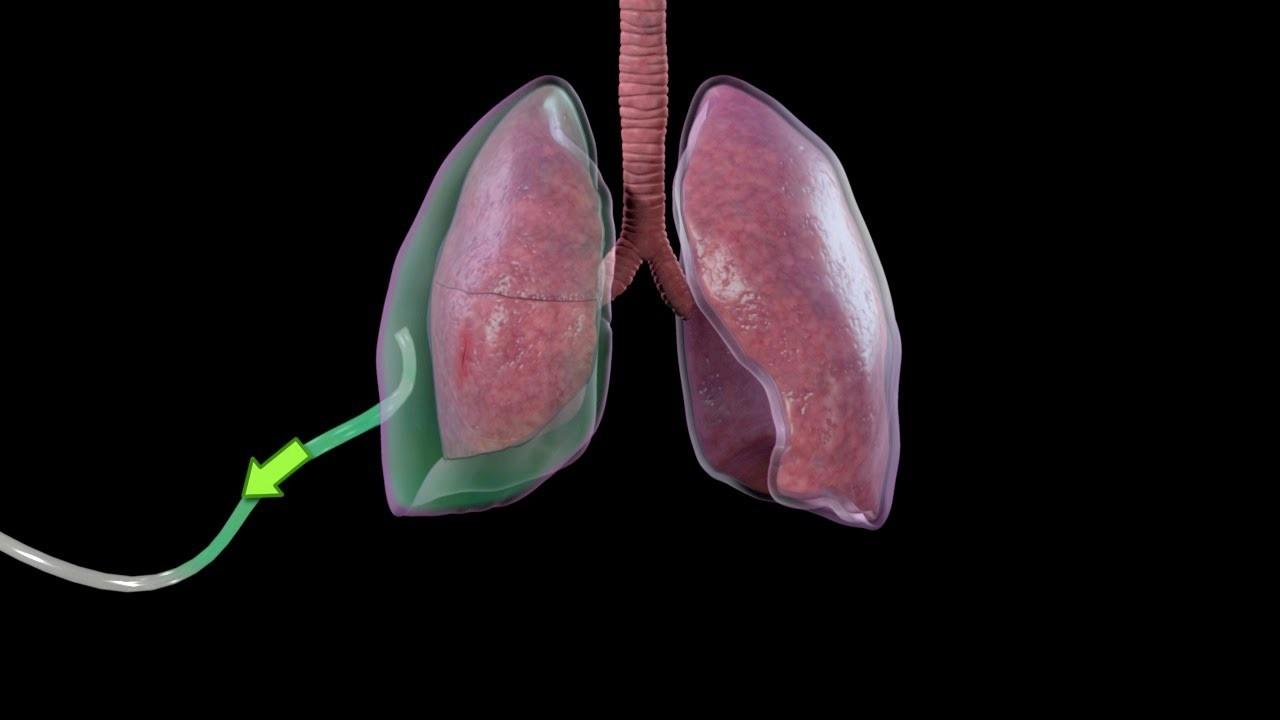 پنوموتوراکس ؛ علل، نشانه ها و روش های درمان