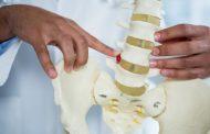 رادیکولوپاتی ؛ علل، نشانه ها، تشخیص، درمان و روش های پیشگیری