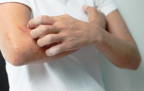 درمان سنتی زونا و روش های کاهش علائم همراه آن