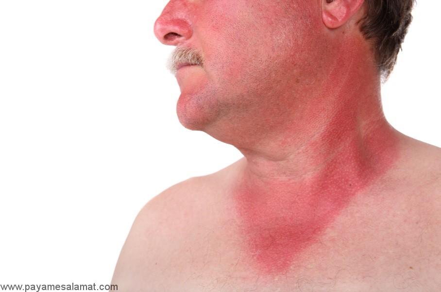 مسمومیت با خورشید ؛ نشانه ها، علل و درمان