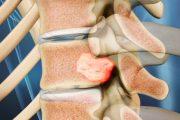 تومور مهره ای ستون فقرات ؛ نشانه ها، علل، عوارض، تشخیص و روش های درمان