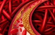 هیپرکلسترولمی خانوادگی ؛ علل، علائم و روش های درمان