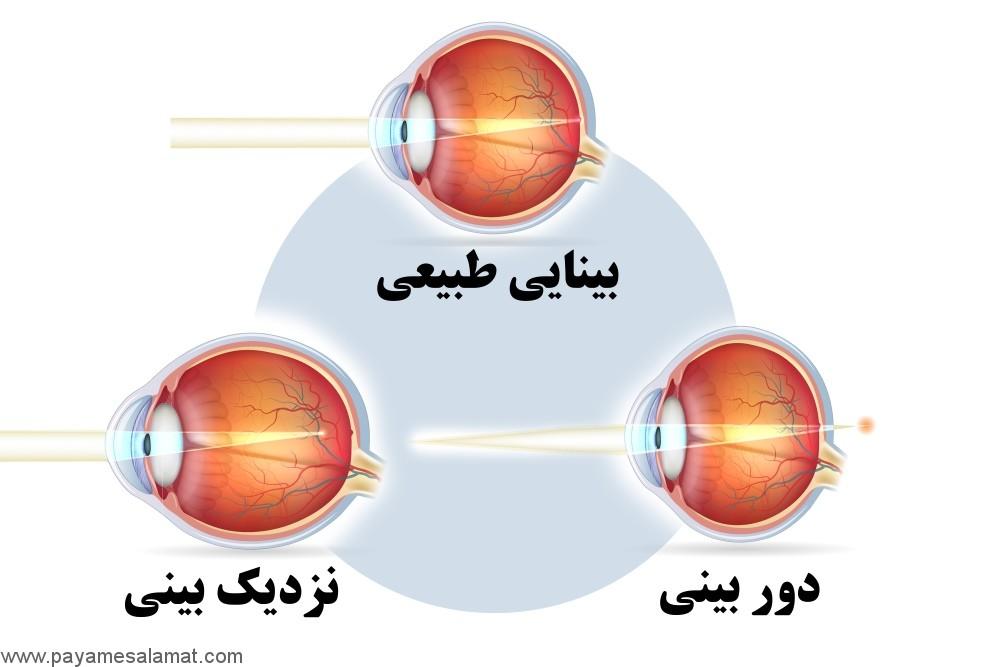 نزدیک بینی ؛ نشانه ها، علل، عوامل خطر، عوارض و روش های درمان