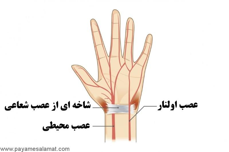 گرفتگی عصب اولنار ؛ علت، نشانه ها، تشخیص و روش های درمان
