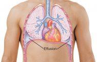 پلورال افیوژن ؛ علل، تشخیص و درمان