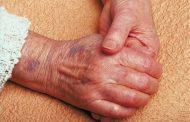 خونریزی زیر پوستی ؛ علل، تشخیص و روش های درمان