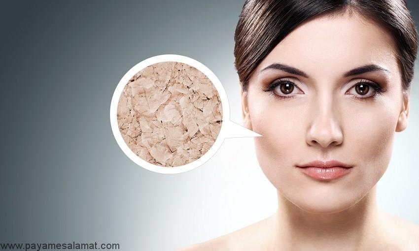 درمان طبیعی پوست های بسیار خشک به کمک 4 ماده در دسترس