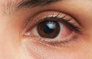 عفونت های چشمی ؛ علل، نشانه ها، تشخیص و روش های درمان پزشکی و خانگی آن