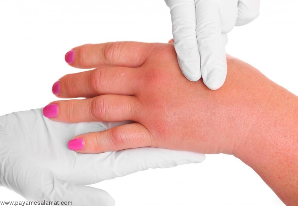 روش های ساده و خانگی برای درمان ورم در بدن