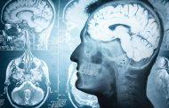 آنچه که باید در مورد تومور مغزی درجه ۴ بدانید