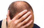 طاسی الگوی مردانه ؛ علل، عوامل خطر و روش های درمان