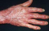اسکلرودرمی ؛ نشانه ها، علل، عوامل خطر، عوارض و روش های درمان