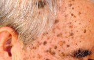 کراتوز سبورئیک ؛ عوامل خطر، تشخیص و روش های درمان
