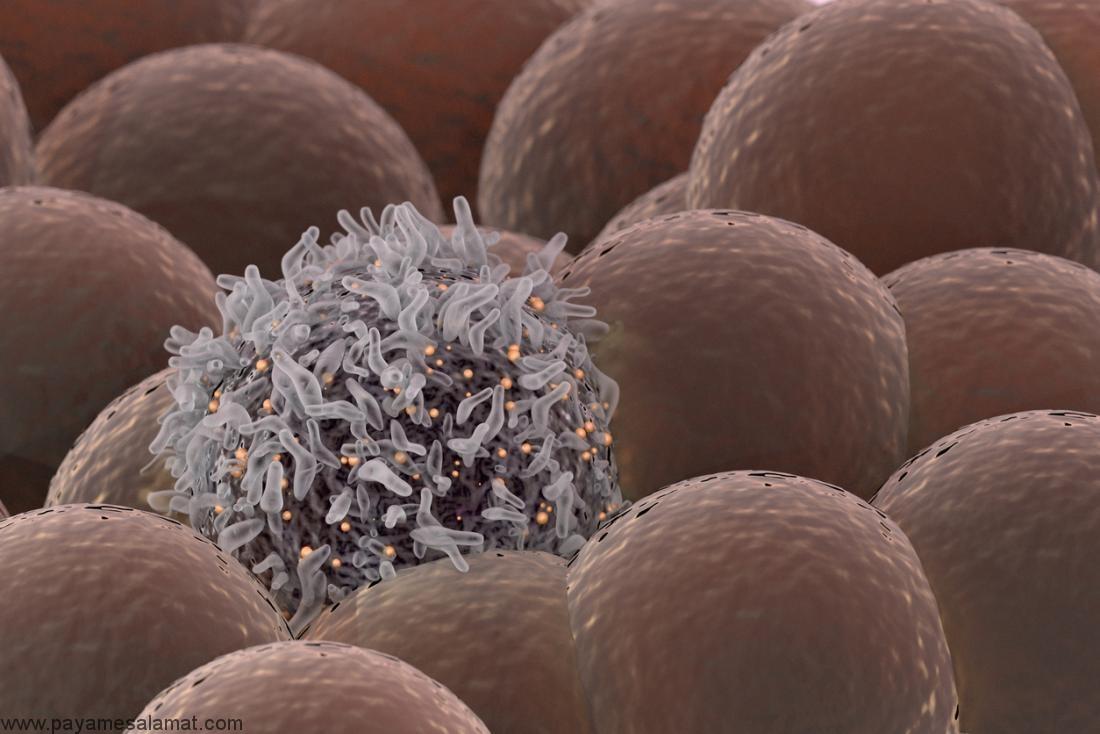 آدنوکارسینوما ؛ انواع، نشانه ها، تشخیص و روش های درمان