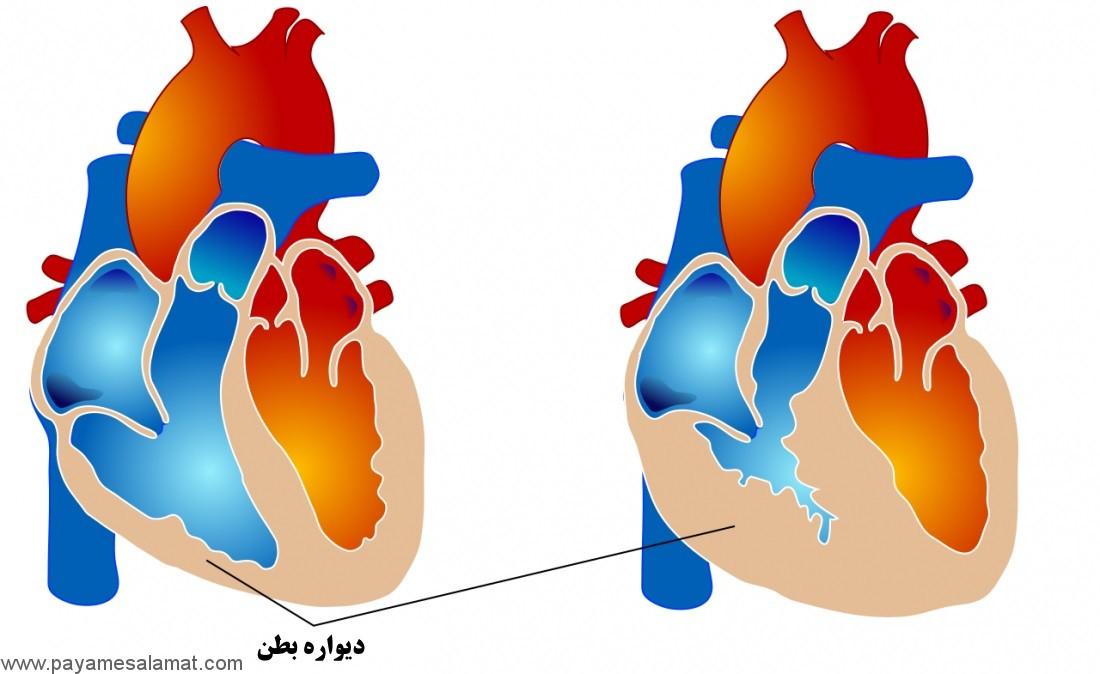 هیپرتروفی بطن راست ؛ علل، نشانه ها، عوارض، تشخیص و روش های درمان