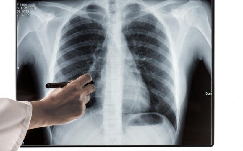 کاسکاندریت یا عفونت غضروفی دنده ؛ علل، نشانه ها و روش های درمان