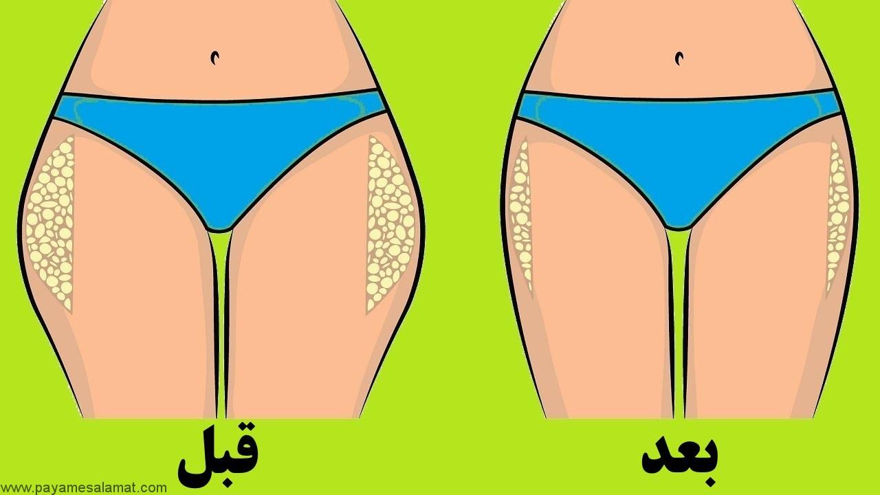 روش های طبیعی برای کوچک کردن ران و باسن و از بین بردن چربی این نواحی