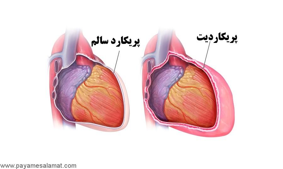 علائم تجمع مایع در اطراف قلب (علائم افیوژن پریکارد یا پریکاردیت)