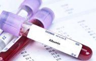 علل کمبود آلبومین در بدن چیست؟